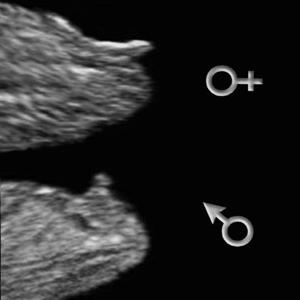 6 weken zwanger echo